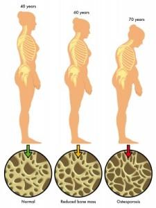 Sígno de Osteoporosis