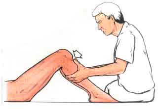 Diagnóstico ruptura de ligamento cruzado posterior