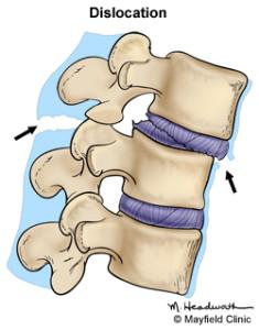 Fractura por dislocación