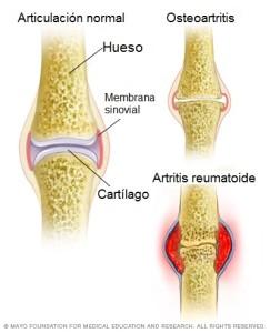 Osteoartritis y artritis reumatoide