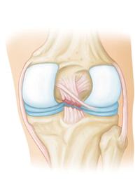 Ruptura de ligamento cruzado posterior