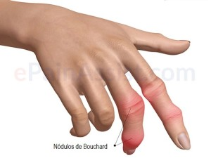 Síntomas de osteoartritis