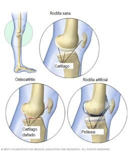 Comparación rodilla sana, desgastada y protesis
