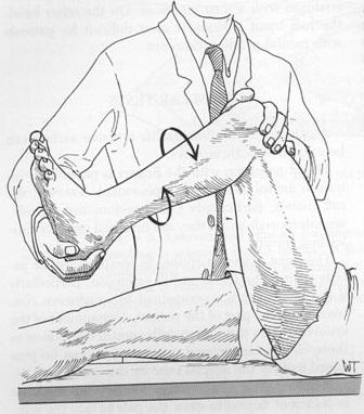 Diagnóstico lesión de meniscos