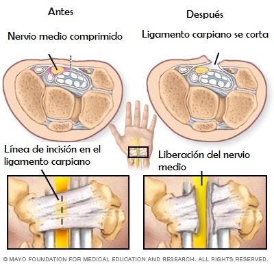 Cirugía para síndrome de túnel carpiano