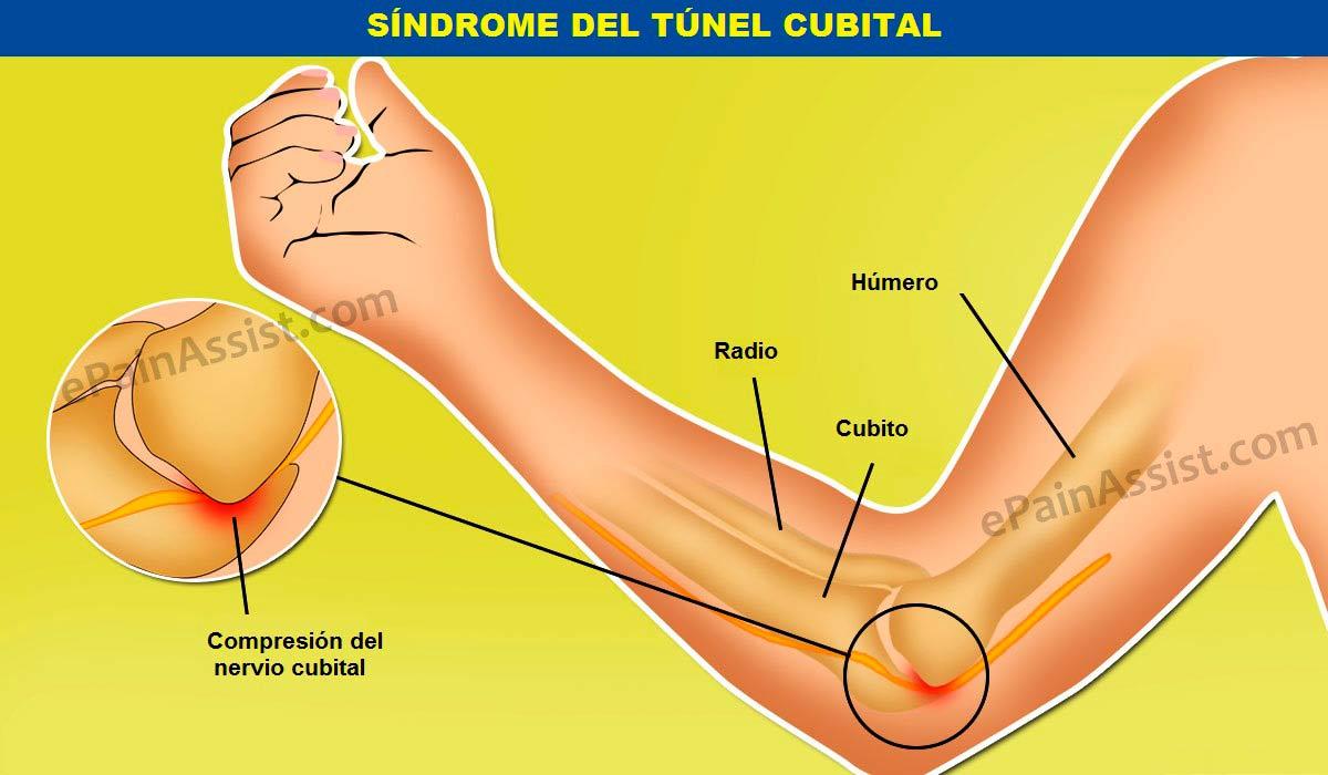 Síndrome del túnel cubital
