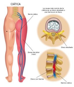 Dolor de nervio ciático en pierna derecha