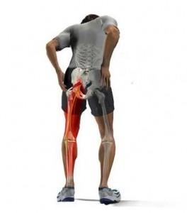 Dolor de nervio ciático en pierna izquierda